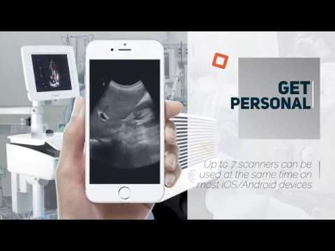 Cart ultrasound gets personal