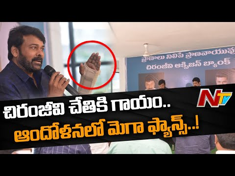 Chiranjeevi undergoes surgery in his right hand palm