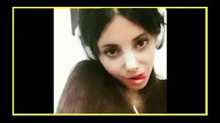 Sahar Tabar Before & After Plastic Surgery  Angelina Jolie's Fan| Corpse Bride