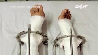 (VTC14)_5 năm kéo dài chân, chàng trai Hà Nội cao thêm 10cm
