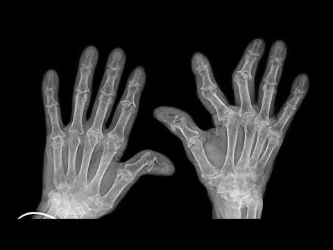 """Што навистина се случува кога ги """"пукате"""" прстите и дали е опасно?"""