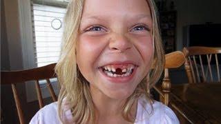 Как дети удаляют молочные зубы