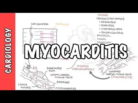 Myocarditis - causes, pathophysiology, investigation and treatment