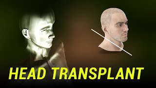 What Happened to the Head Transplant?