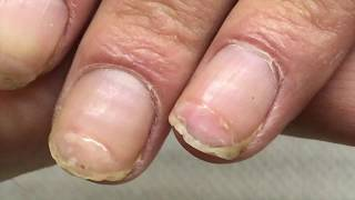 #TRANSFORMATION of #HARDWORKER RUINED nails 🔧💅🏻 DETAILED STEP BY STEP TUTORIAL