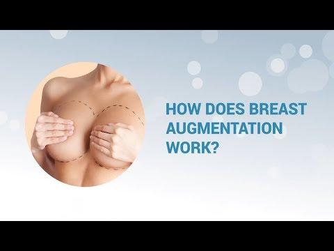 How Does Breast Augmentation Works?