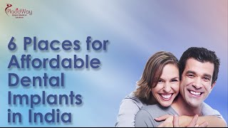 Watch Video Top 6 Places for Affordable Dental Implants in India