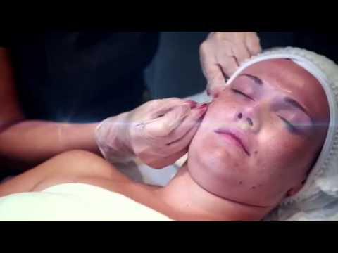 Milia Removal Facial Youtube