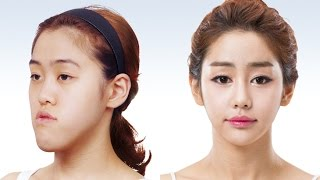 [Let me in Vietsub] Phẫu thuật thẩm mỹ Hàn Quốc - phần 1