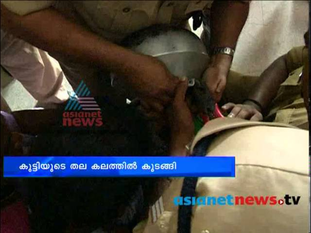Chuttuvattom, Thiruvananthapuram News- Child head entrapment in a cooking pot