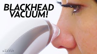 I Tried a Blackhead Remover Pore Vacuum! | Beauty with Susan Yara