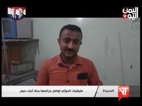 قناة اليمن اليوم - نشرة الثالثة والنصف 30-08-2019