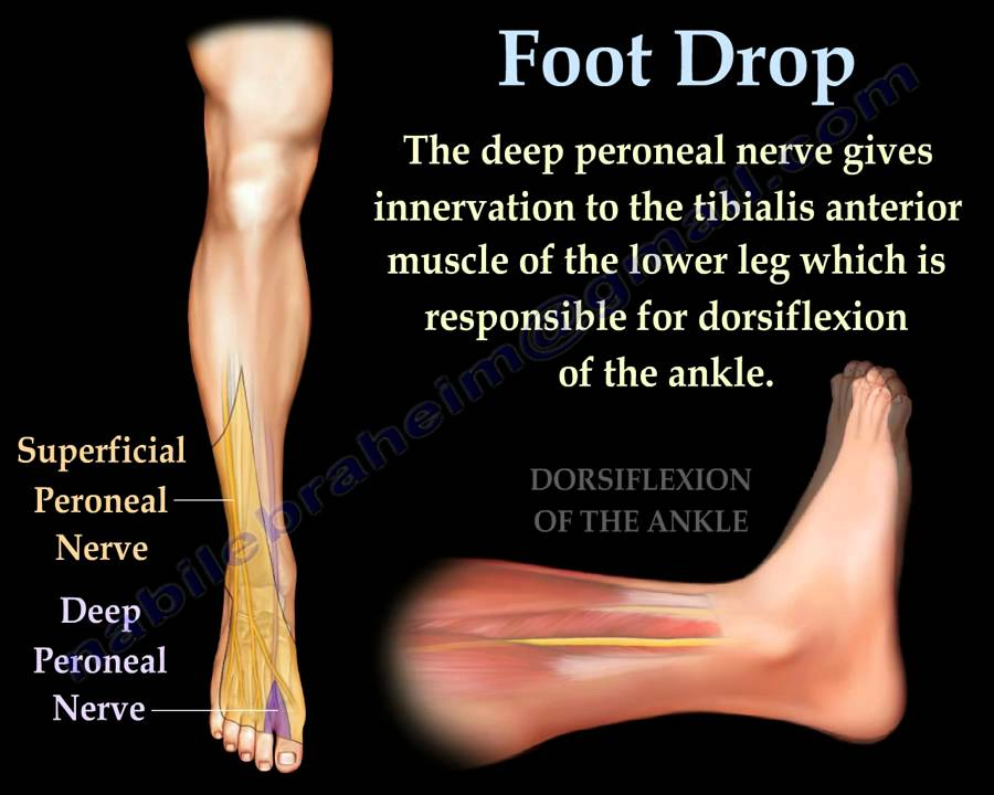 Foot Drop Peroneal Nerve Injury Everything You Need To