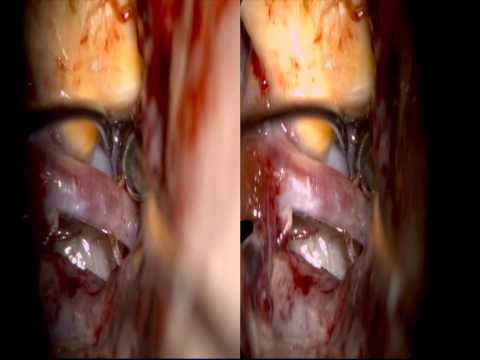 Lawton - Atherosclerotic