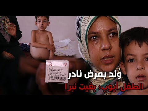 ولد بمرض نادر علاجه يكلف 10ملايين في الشهر الطفل أيوب يستغيث بالمحسنين