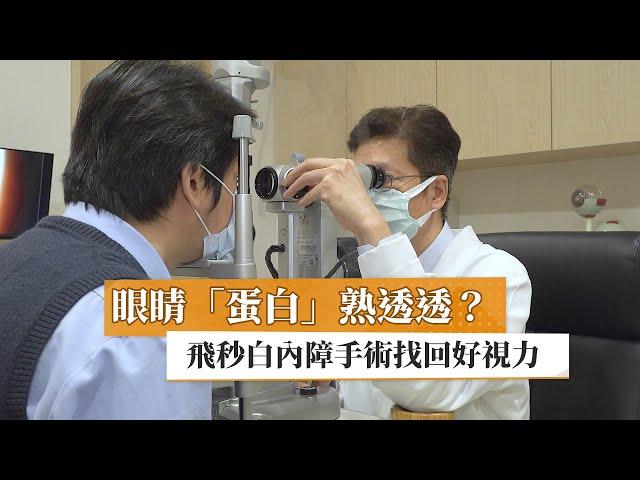 眼睛「蛋白」熟透透? 飛秒白內障手術找回好視力