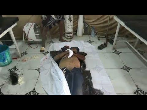 شهيد وجريحان في قصف حوثي على مجمع إخوان ثابت بمدينة الحديدة