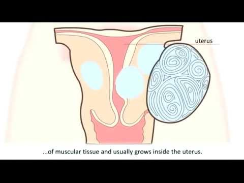Laparoscopic fibroid removal (myomectomy)