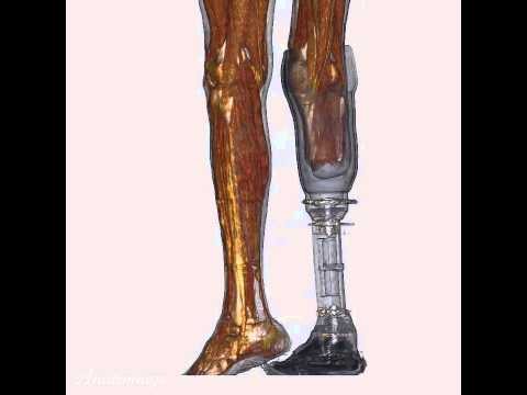 Amputated Lower Limb