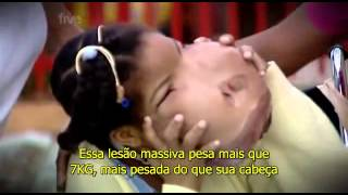 Extraordinary People The Girl With A New Face part 1 LEGENDADO