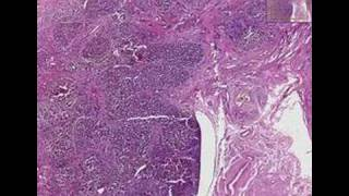 Histopathology Liver--Primary biliary cirrhosis