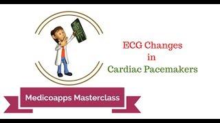 ECG In Cardiac Pacemakers