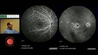 Subretinal Fluid - Ophthalmology Resident Lecture - April, 2018
