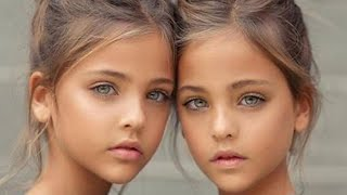 Wait Until You See the Most Beautiful Twins in the World Now