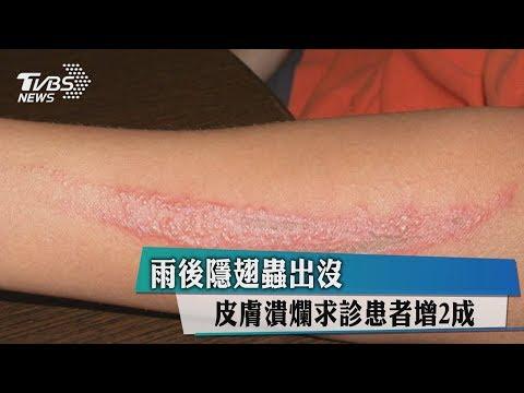 雨後隱翅蟲出沒 皮膚潰爛求診患者增2成