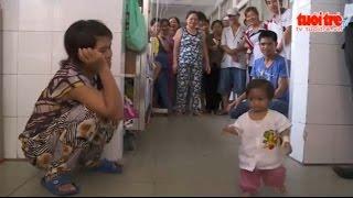 """Gia Lai: Cô bé mang """"hội chứng người chim"""" - TinGiaLai.com"""