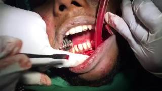 Lower jaw fracture treatment