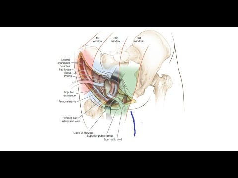 Ilioinguinal Approach According to the Letournel.