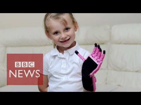 Artificial hand made by 3D-Printer