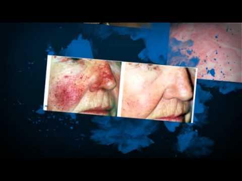 Thumbnail for Dermatologist Fort Lauderdale