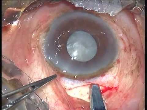 Mature Cataract with small pupil SICS - Dr Prathmesh Mehta.mpg