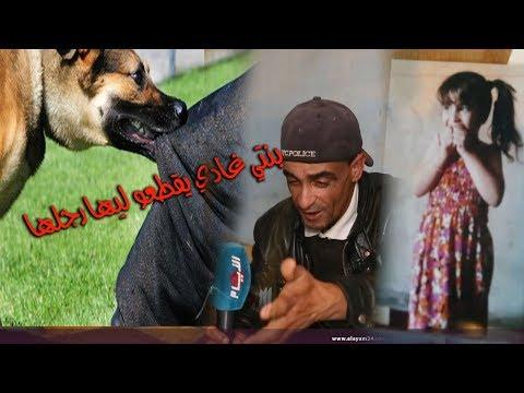 تفاصيل صادمة عن الكلب الذي نهش رجل طفلة بالمحمدية