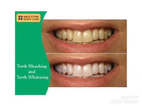 Contact 32 Smile Stone Dental Clinic - Dental Clinic in New Delhi