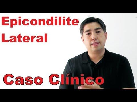 Baixar Epicondilite Lateral (Cotovelo de Tenista)