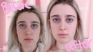 I Tried KYLIE SKIN For 30 Days ♡ MY RESULTS + detailed review