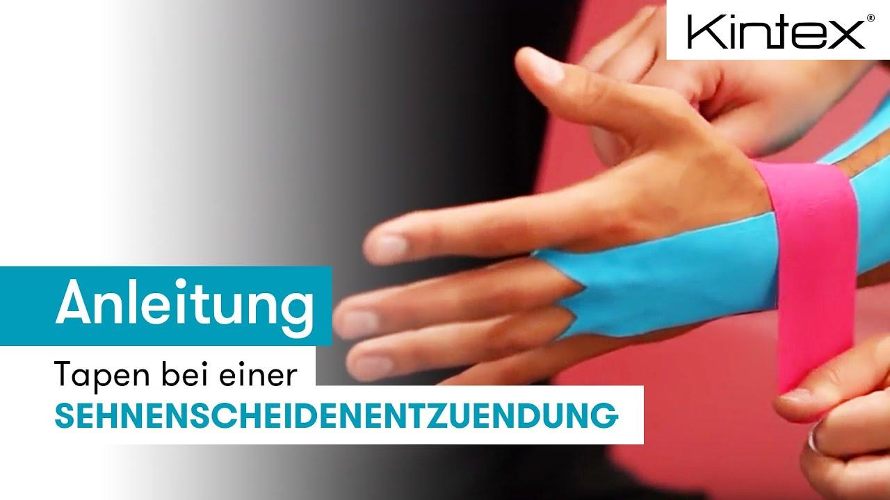 Kintex 174 Anleitung Zum Kinesiologie Tapen Bei Einer