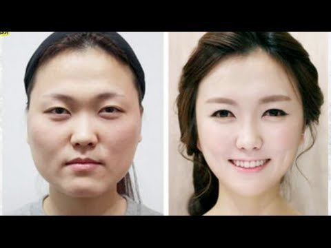 Has South Korea S Extreme Plastic Surgery Gone Too Far