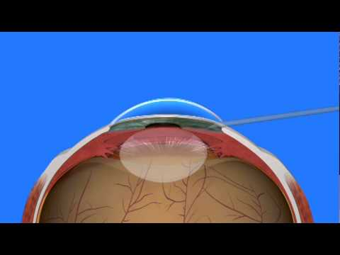 Caused by the clouding of the lens, cataract is a leading cause of treatable visual impairment that will affect more than half of all Americans by the time they are 80 years old. Surgical removal of the opaque lens with an artificial lens implanted is a successful procedure of cataract treatment.