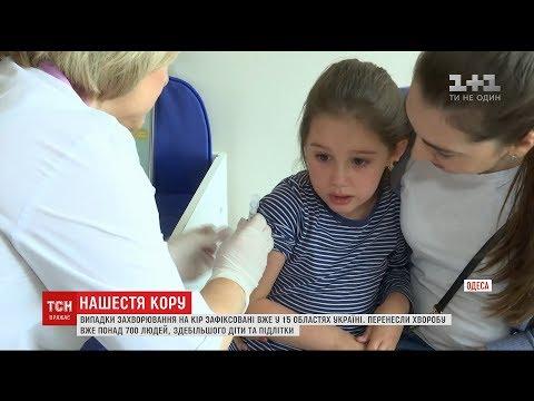 Україною шириться спалах кору, хворих – вже понад 700