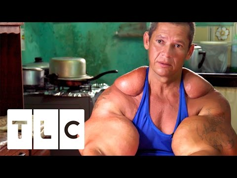 The Man Whose Arms Exploded | VideoMoviles com
