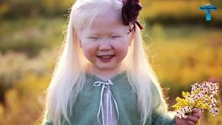 Top 10 Kids Who Are Unique & Amazing In The World - Kids With Unusual Features!
