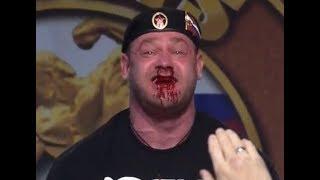 Mikhail Shivlyakov bloody 426kg/940lbs Deadlift at Arnold Strongman Classic 2018
