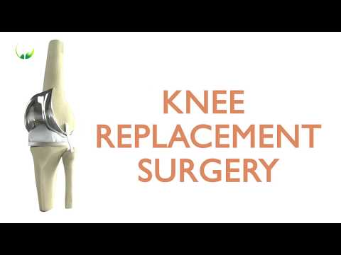 Total Knee Replacement Surgery in Delhi at Dr. Khera's Clinic