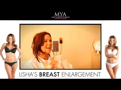 Lisha's BA Journey with MYA
