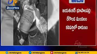 Telangana: MBBS student body found in well with hands, leg..