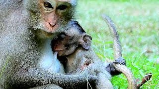 Mom Very Much Concern Baby's Situation, Baby Much Better.